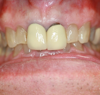 crowns not by Mark Dennis, DDS