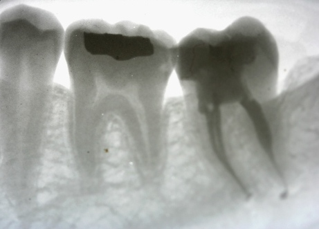 Root Canal by Mark Dennis,DDS